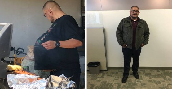 Thicker beer belly turns out to be a 77-pound Tumor